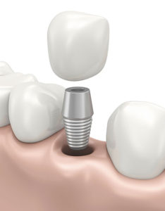 dental implant Long Island