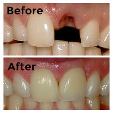 Dental Implants New Hyde Park Long Island North Island