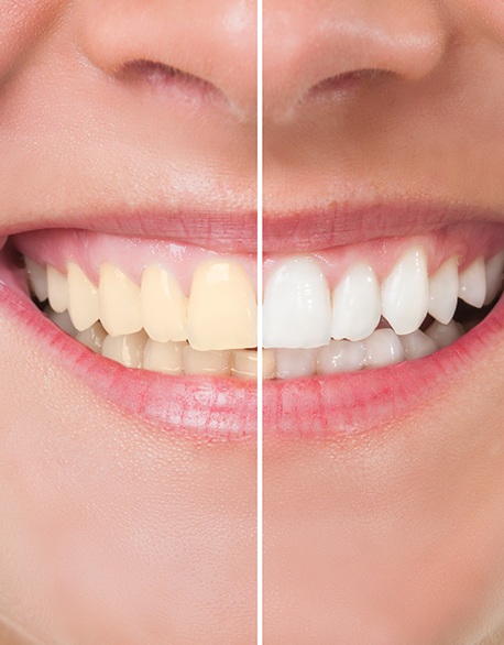teeth whitening long island