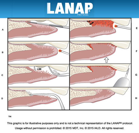 LANAP Procedure Long Island