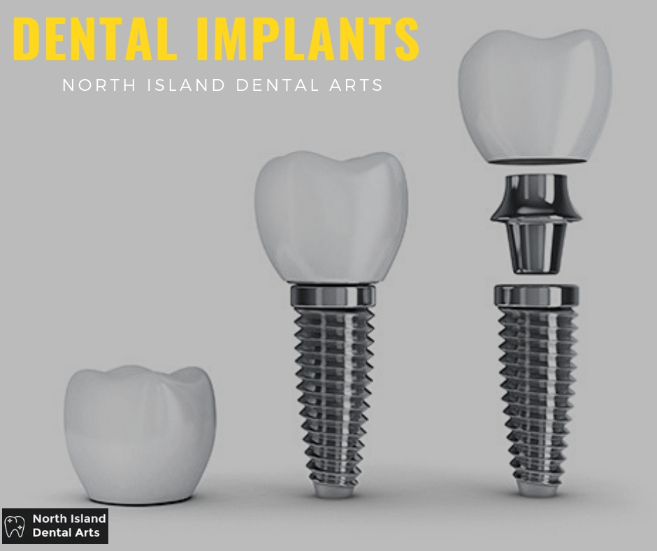 Dental Implants Long Island
